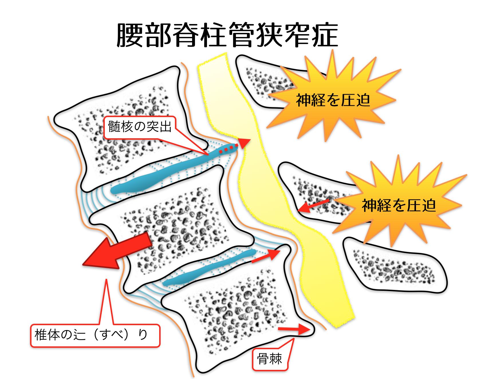 腰部脊柱管狭窄症の病態