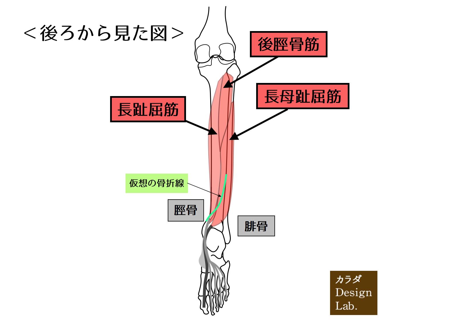 下腿後面深層の筋と仮想の骨折線