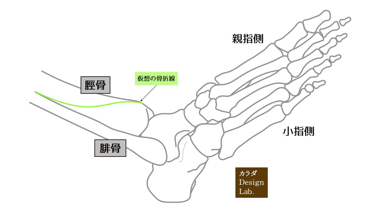 仮想の骨折線